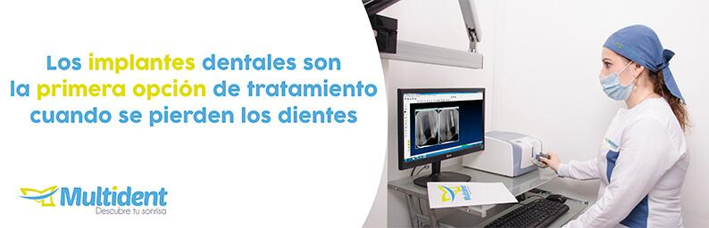 ¿Cómo es el tratamiento de implantes dentales y su precio?