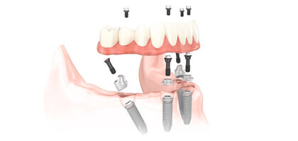 Implantes dentales precios ¿afecta éste a la calidad del implante?