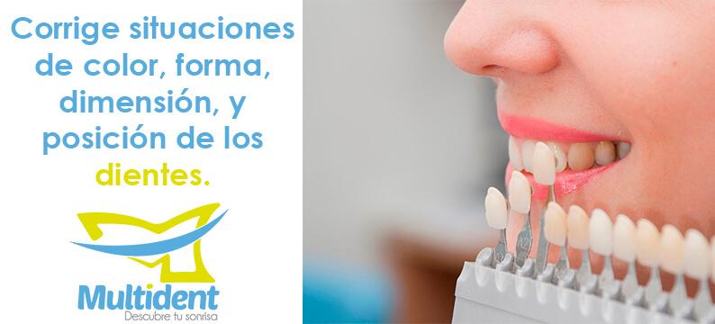 ¿Qué son las Carillas Dentales o Lentes Cerámicos?