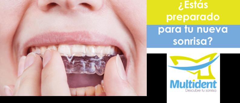 Ortodoncia rápida